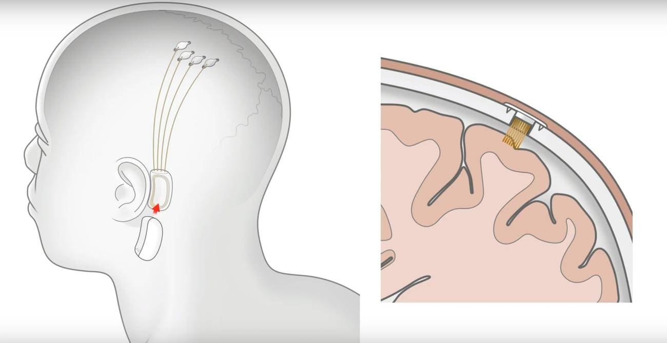Neuralink N1 implant at the ear (credit: Inverse)